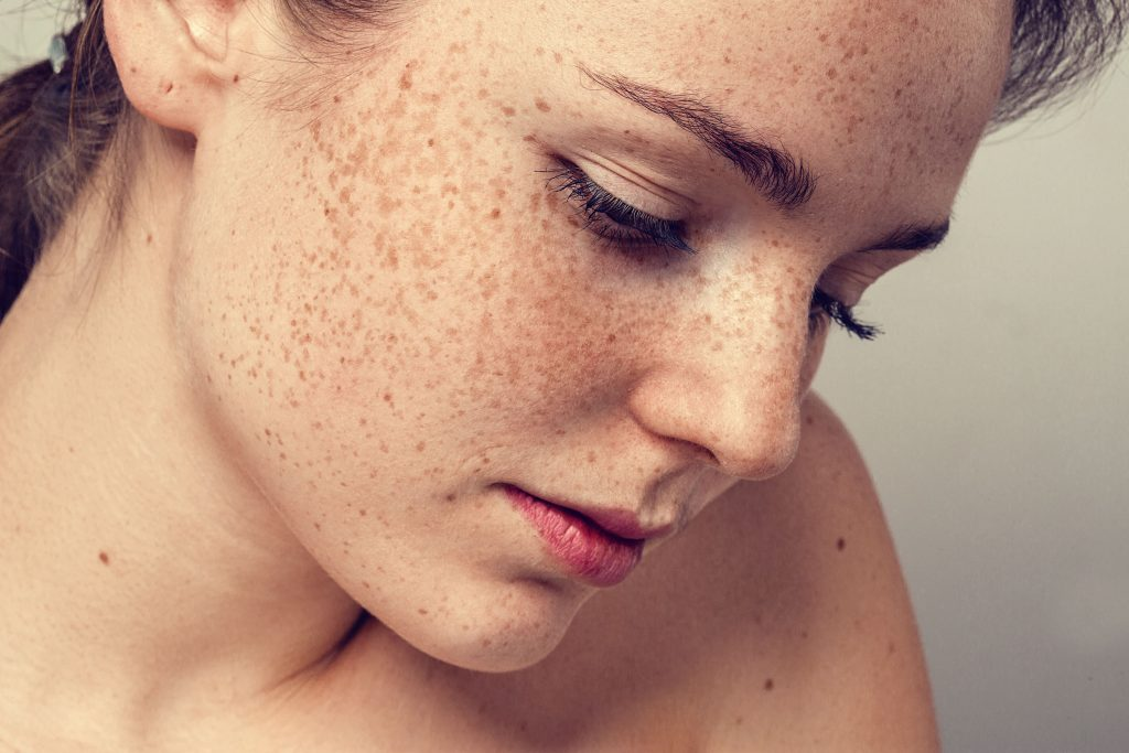 How to treat freckles on the face