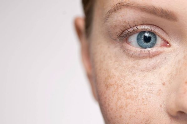 How to treat freckles
