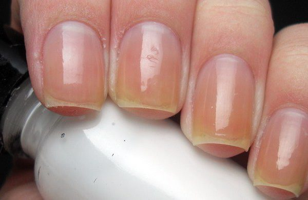 Yellow nails caused by what?